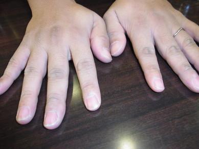 アカスリ後の手(^0_0^)