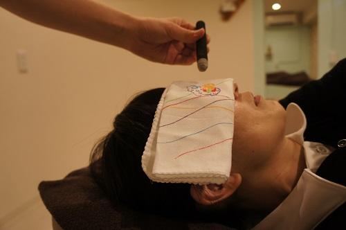 眼精疲労☆鍼灸治療