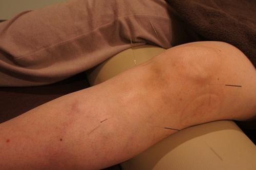 膝の治療☆鍼灸治療