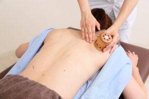 肩こり・腰痛に鍼灸治療