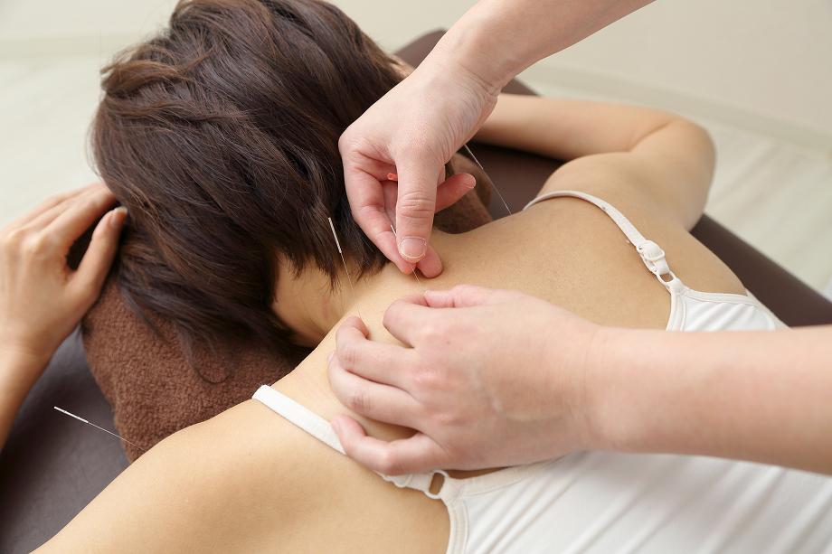 鍼治療体験