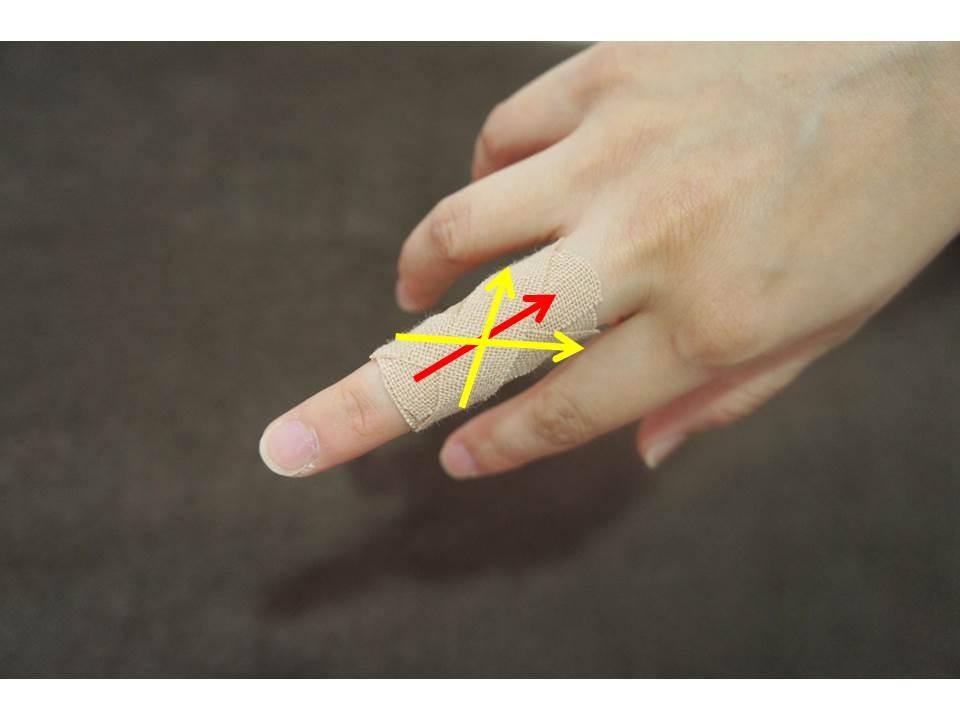 指を曲げるのが痛い場合