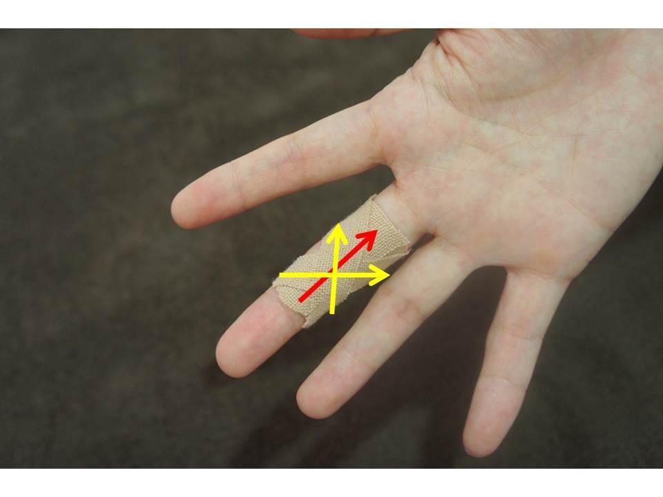指を伸ばすのが痛い場合